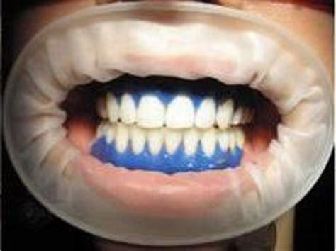 Tanden Polijsten Voor Bleken by Tanden Bleken Tandartspraktijk Smile Mondzorg Tilburg