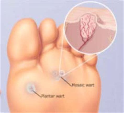 planter wart removal related keywords suggestions for plantar wart