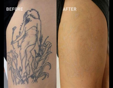 tattoo removal wollongong sleeve tattoo removal before and after best tattoo 2017