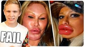 lippen aufgespritzt vorher nachher botox fails sch 246 nheits op plastische chirurgie disaster