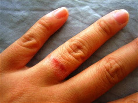 Wedding Ring Rash Cure by Ring Rash Pictures To Pin On Pinsdaddy