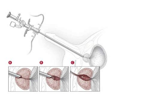 tur p what is a turp qprostate surgery