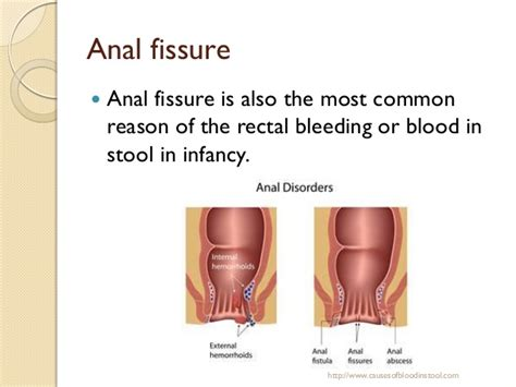Blood In Stool And Urine by Blood In Stool And High Blood Pressure How To Make