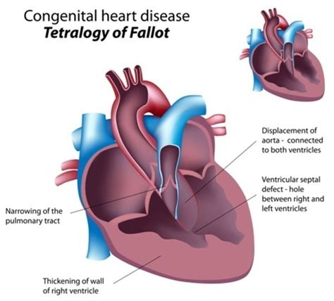 q risk for heart disease 1q21 1 microduplication genetics home reference