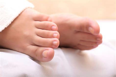 baby schläft nicht im bett nagelpilz erkennen symptome check mit bildern