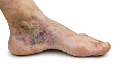 In Vein understanding varicose veins disease and varicosities