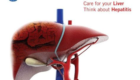 Swelling In And Joints Liver Detox by 17 Best Images About Hepatitis A B C On