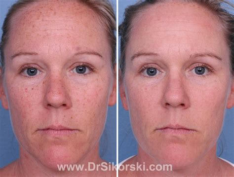 e one ipl session before and after on man and woman face orange county intense pulse light ipl before and after