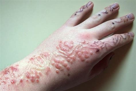 warning black henna tattoos may cause allergic