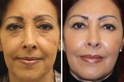 sculptra in phoenix amp scottsdale arizona