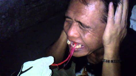 Biaya Pemutihan Gigi Jogja rasa takut saat dicabut gigi klinik gigi dental