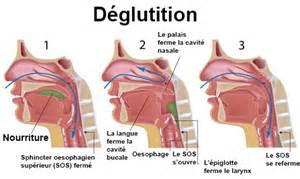 troubles de la d 233 glutition sympt 244 mes traitement