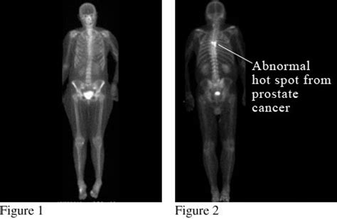 Z Techs Breast Cancer Scanner by Bone Scan Of The Spread Of Cancer