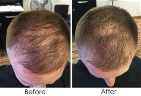 viviscal before after viviscal professional hair growth tablets aurora skin