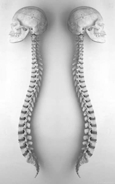 17 Best images about Spinal Cord on Pinterest | Models