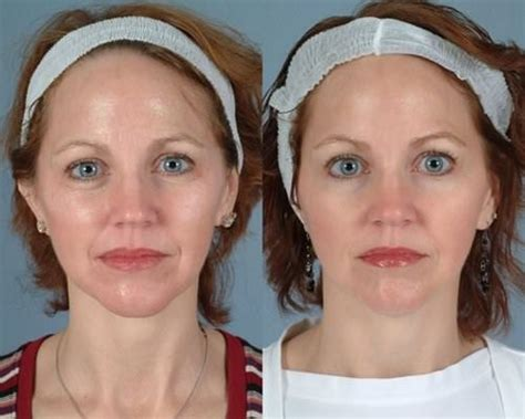 50 year old women before and after w cosmetic surgery 174 botox before after photo gallery