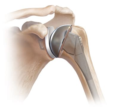 replacement shoulder information arthrex total shoulder arthroplasty