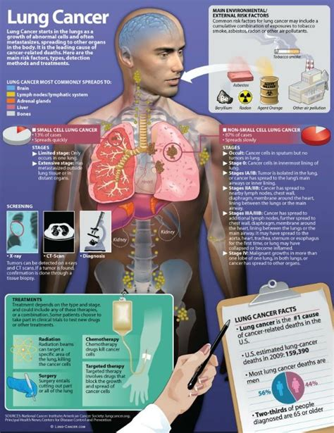 is there a cure for lung cancer infographic showing stages of lung cancer treatment