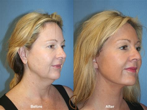 best hairstyles to give face a lift facelift related keywords suggestions facelift long