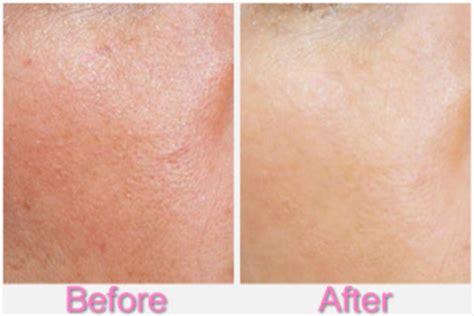 Wash Strawberry Pore Minimizer Beon Skin do pore minimizers work healthguidance