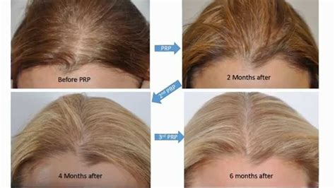 can platelet rich plasma stop hair loss and grow new hair prp platelet rich plasma to improve hair loss youtube