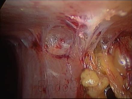 what are adhesions after c section symptoms after endometriosis surgery adhesions might be