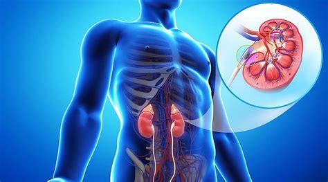 calcoli renali e alimentazione come prevenire i calcoli renali clipsalute