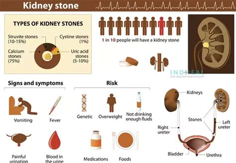 the kidney stone symptoms in women how much does a surgery to remove a 4 mm stone by either