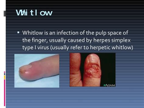 herpetic whitlow during immunosuppressive therapy for