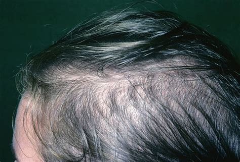 gpnotebook female pattern hair loss picture of female pattern baldness