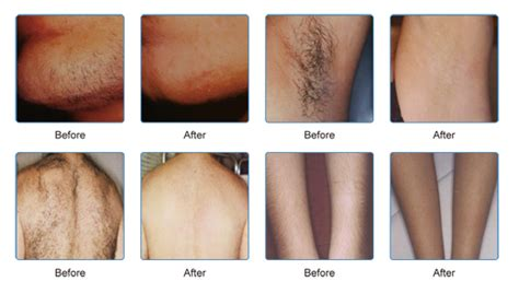 Best Type Of Laser Hair Removal by Fda Approved Laser Hair Removal Machine 808nm Diode Laser