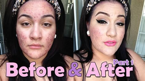 foundation routine for severe acne part one youtube