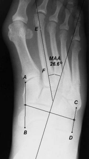 The Association of Metatarsus Adductus to the Proximal