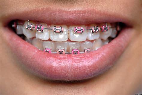 color braces asian teens wearing fake braces as status symbol report