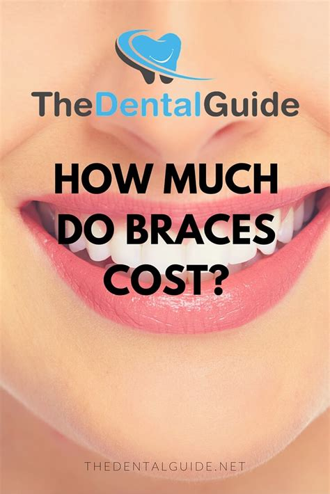 how much how much do braces cost in the uk the dental guide
