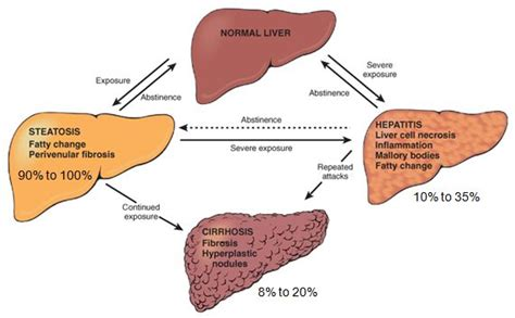 liver failure stages morphology of alcoholic liver disease medchrome