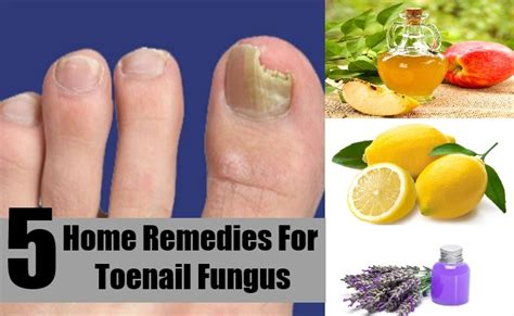 5 home remedies for toenail fungus treatment