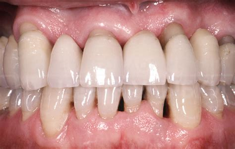 gingivitis treatment periodontal disease treatment before and after