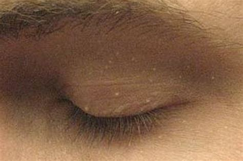 bump on s eyelid white bump on eyelid causes treatment remedies pictures