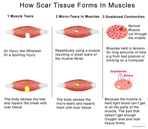 Does Massaging Your Muscles Help Detox by How Scar Tissue Forms In Muscles Infographic