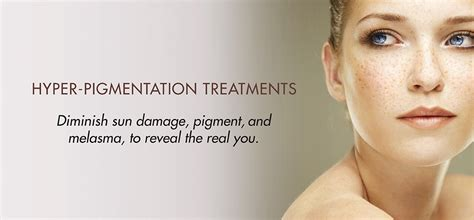 hyper pigmentation melasma treatments in michigan face