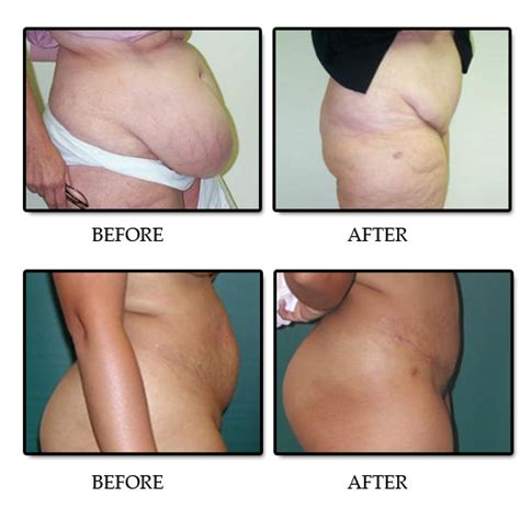 c section plastic surgery tummy tuck in baytown tx advanced plastic surgery centre