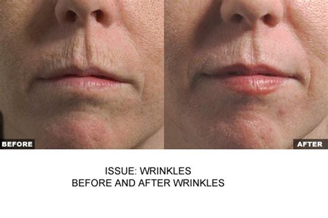 laser wrinkle removal before and after non surgical before and after 111 harley st