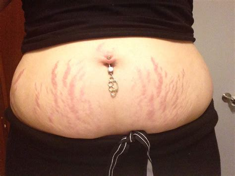 stretched tattoos the gallery for gt stomach tattoos to cover stretch marks