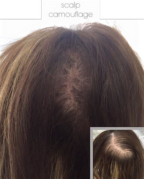 a professional makeup artist to camouflage a scalp scar new scar camouflage techniques permanent make up glasgow