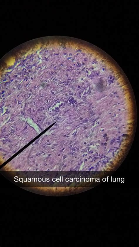 Squamous Cell Carcinoma Research Paper by The 25 Best Squamous Cell Carcinoma Lung Ideas On