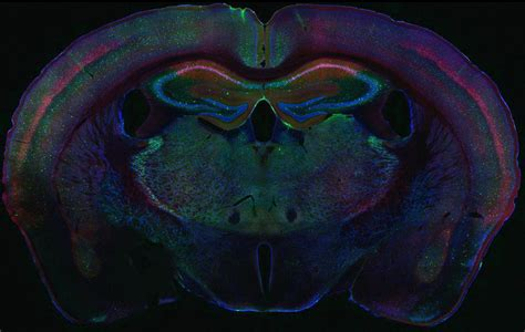 mouse brain coronal section image gallery mbf bioscience