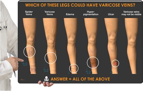 varicose veins treatment symptoms causes pictures leg restless legs alsara vein clinic