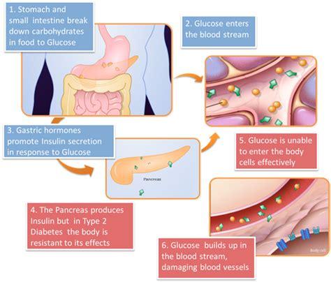 diabetes diagram vitamin for diabetes patients type 2 diabetes disease process