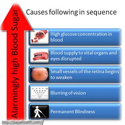 What Causes Blindness In Diabetics 27 best images about nursing notes on an eye